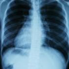De ademhaling, de controle hiervan en de patronen